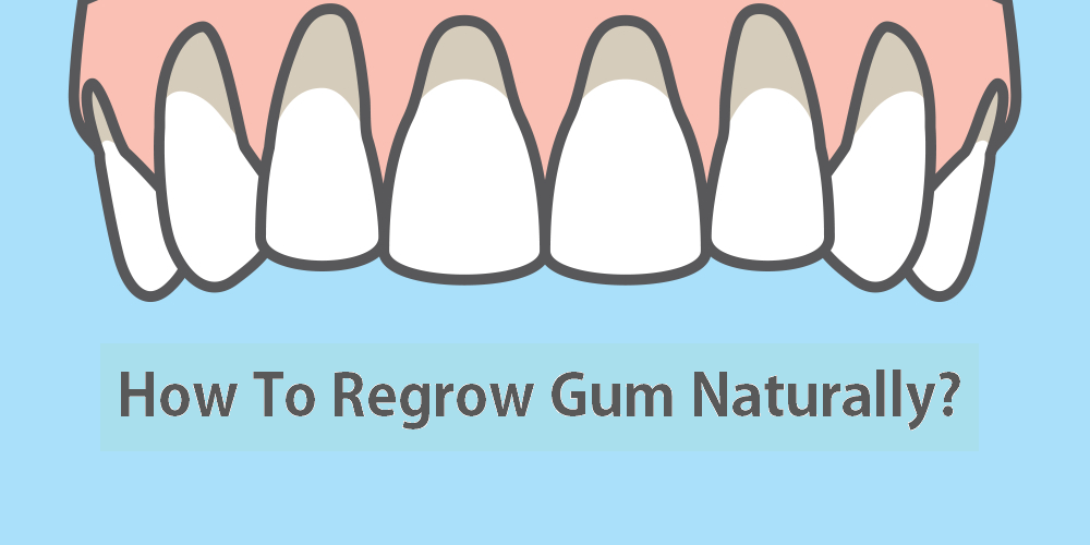Repair Gums Causes Amp Treatment Of Gum Disease